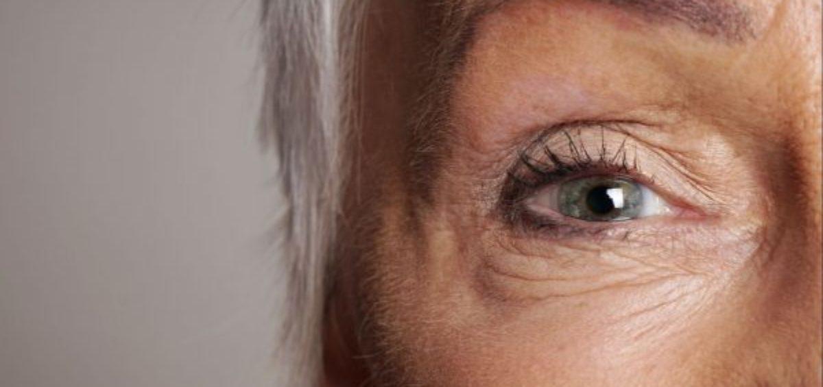 Visão monocular e a deficiência para fins de benefício assistencial (BPC/LOAS)